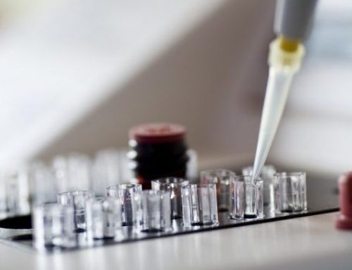 What is the Step-by-step Process for IVF?