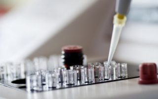 Smear Test in Laboratory about fertility